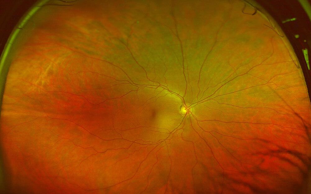 Ultrawide field image